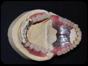 La prothèse composite ou hybride