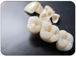 zircone-dental-concept